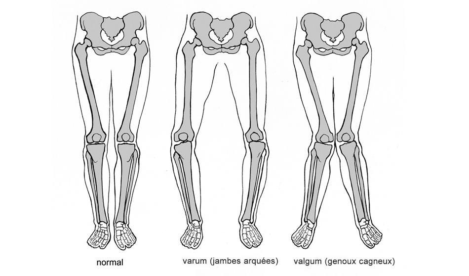 genoux-varum-valgum