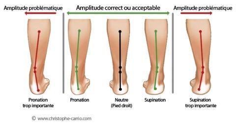 http://www.christophe-carrio.com/blog/files/Stop-douleur-tibia-periostite.html