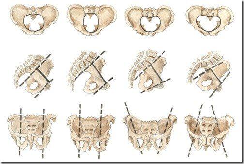 Types de pelvis feminin